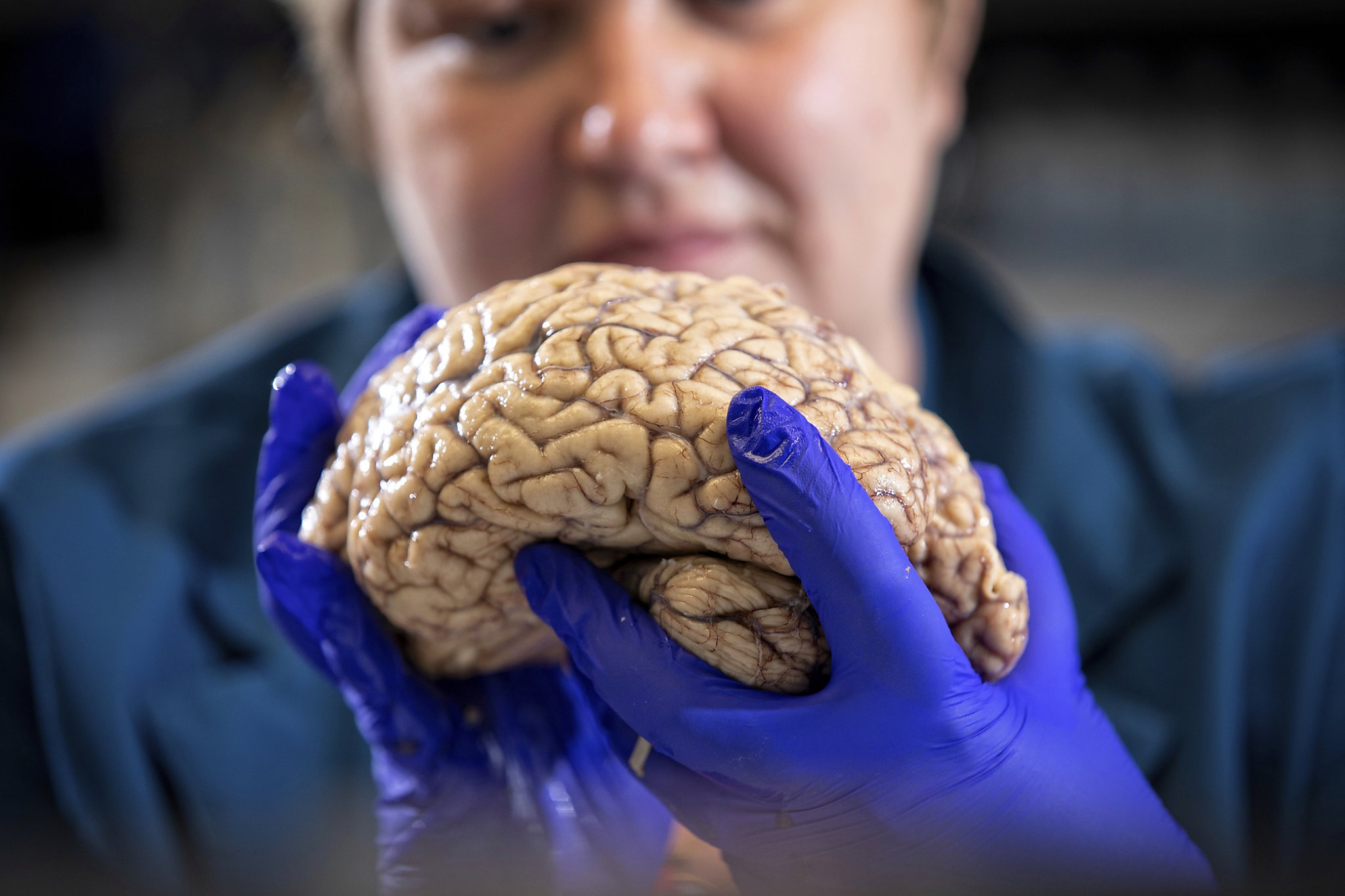Scientists rethink Alzheimer's, diversifying approach