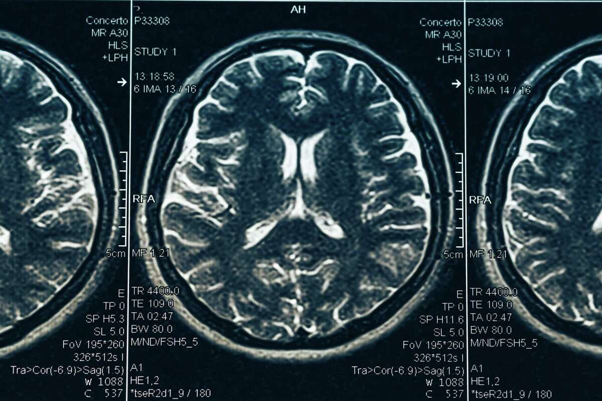 We heard from Maria Carrillo, chief science officer of the nationwide Alzheimer's Association, during a recent visit to San Diego. (Dreamstime/TNS)