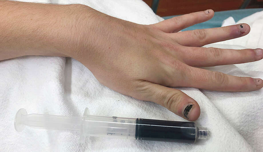 Doctors in Rhode Island say a 25-year-old woman's skin and nails turned blue from a condition called acquired methemoglobinemia. Photo: New England Journal Of Medicine / The Washington Post