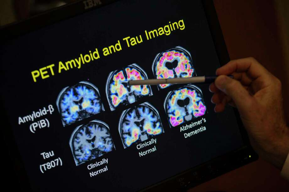 FILE - In this May 19, 2015, file photo, a doctor points to PET scan results that are part of a study on Alzheimer's disease at a hospital in Washington. Scientists know that long before the memory problems of Alzheimer's become obvious, people experience more subtle changes in their thinking and judgment. (AP Photo/Evan Vucci, File) Photo: Evan Vucci, STF / Associated Press / Copyright 2018 The Associated Press. All rights reserved.