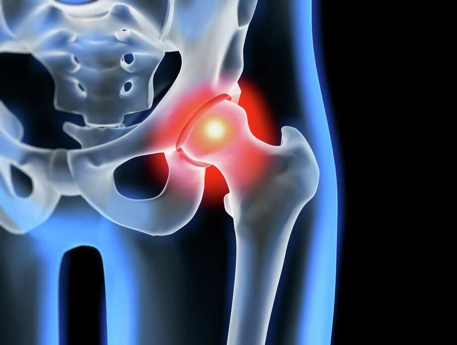 Griffin Hospital offers free presentation on minimally invasive hip surgery Oct. 16 Photo: Contributed Photo. / ©peterschreiber.media - stock.adobe.com