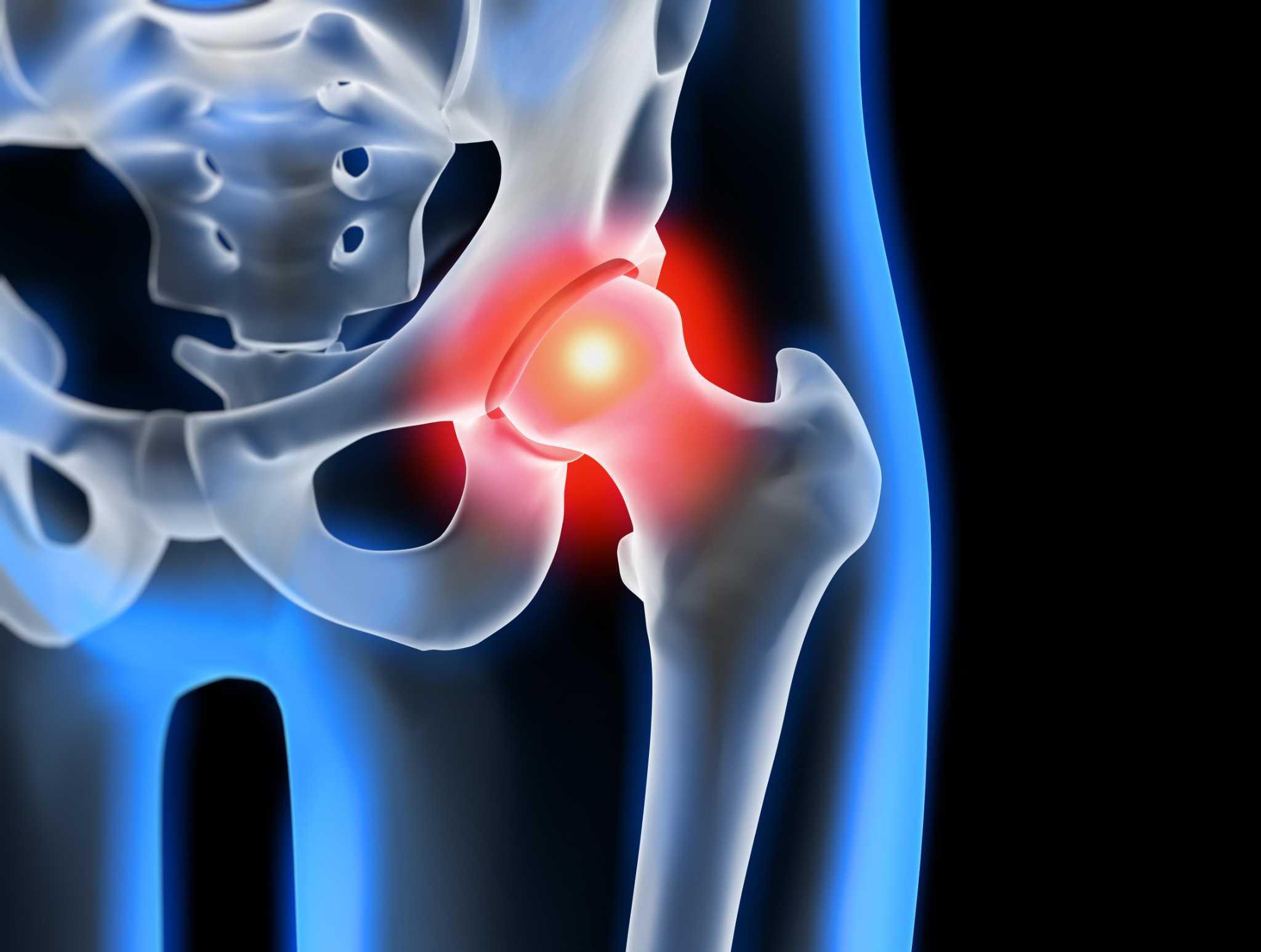 Лечение голеностопного артрита