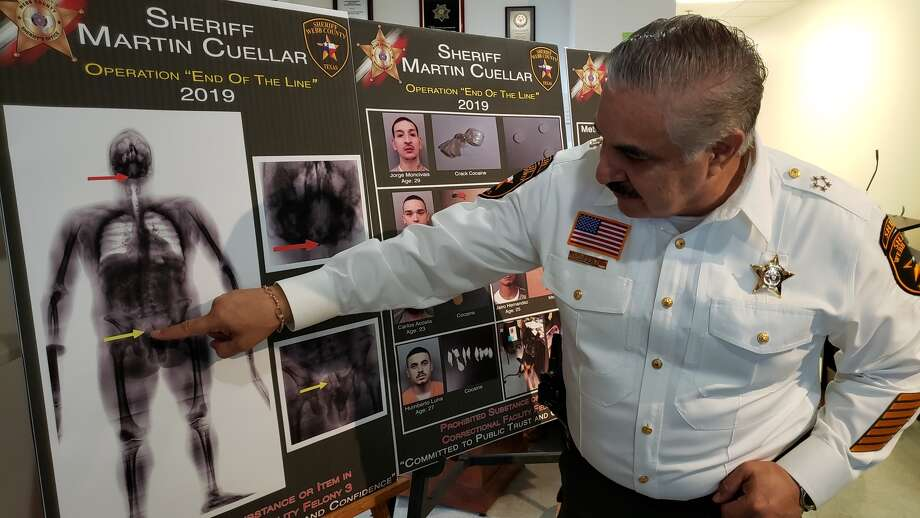 "Webb County Sheriff Martin Cuellar shows the anomalies in the stomach area of an inmate who tried to smuggle narcotics in a condom he had ingested. This was part of the results of ""Operation: End of the Line."" Photo: Courtesy"