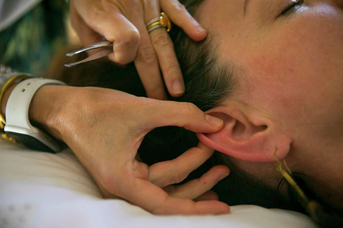 Licensed acupuncturist Leila-Scott M. Price stimulates an ear seed with her fingers on the outer ear of Katherine Tramonte at the Center for the Healing Arts & Sciences. Ear seeds are trending in the non-traditional medicine world for people who are averse to needs or need prolonged stimulation.