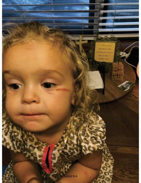 Charlotte had a gash on her face after she returned from foster care. Courtesy photo