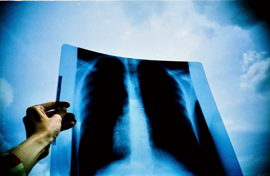 Lung cancer x-ray Photo: Stephan Kaps / EyeEm / Getty Images