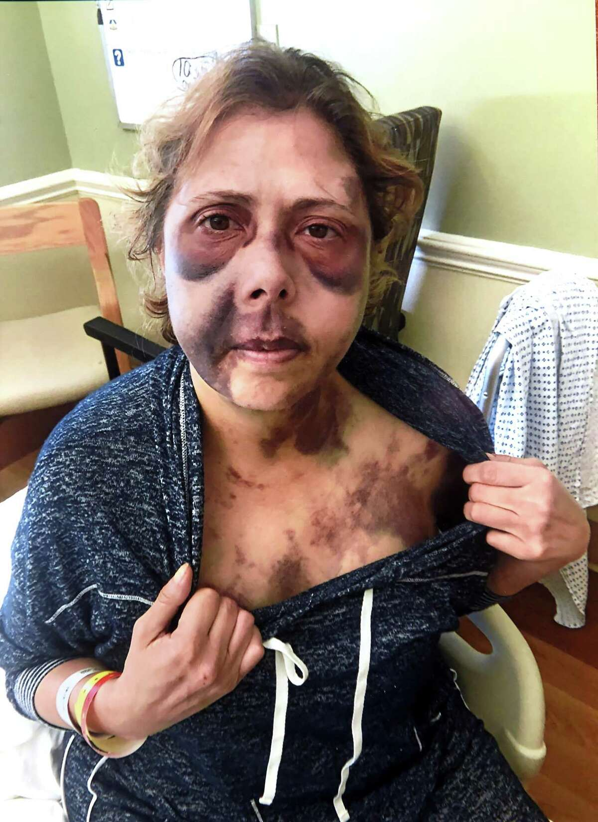 Photograph of Lori Wierzbicki after she was beaten in her home at the at the Milford Housing Authority's apartments on Jepson Drive in Milford in March of 2019.