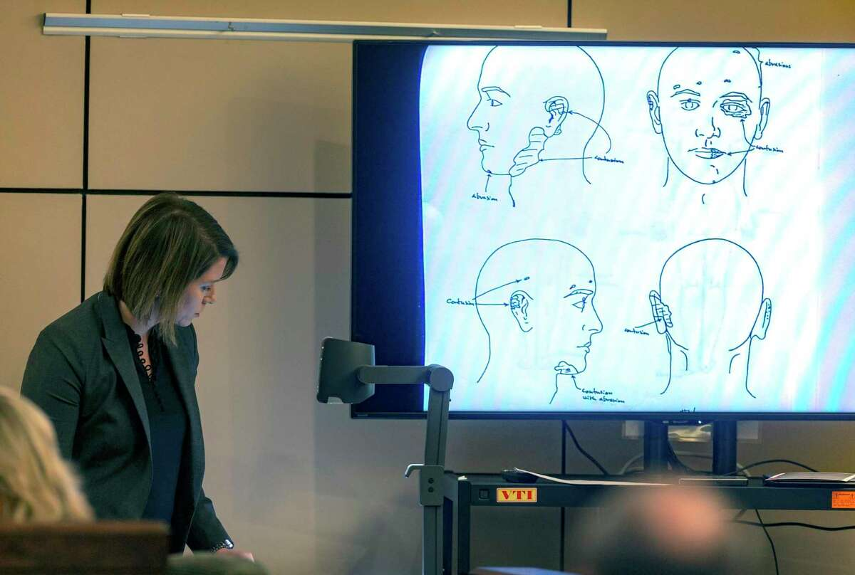 Prosecutor Alessandra Cranshaw displays a diagram Wednesday, Dec. 4, 2019, in the 144th state District Court in the Cadena-Reeves Criminal Justice Center during the murder trial of Mark Howerton of injuries found on Cayley Mandadi?•s head. Howerton is alleged to have beaten Mandadi, a 19-year-old Trinity University cheerleader, to death in 2017.