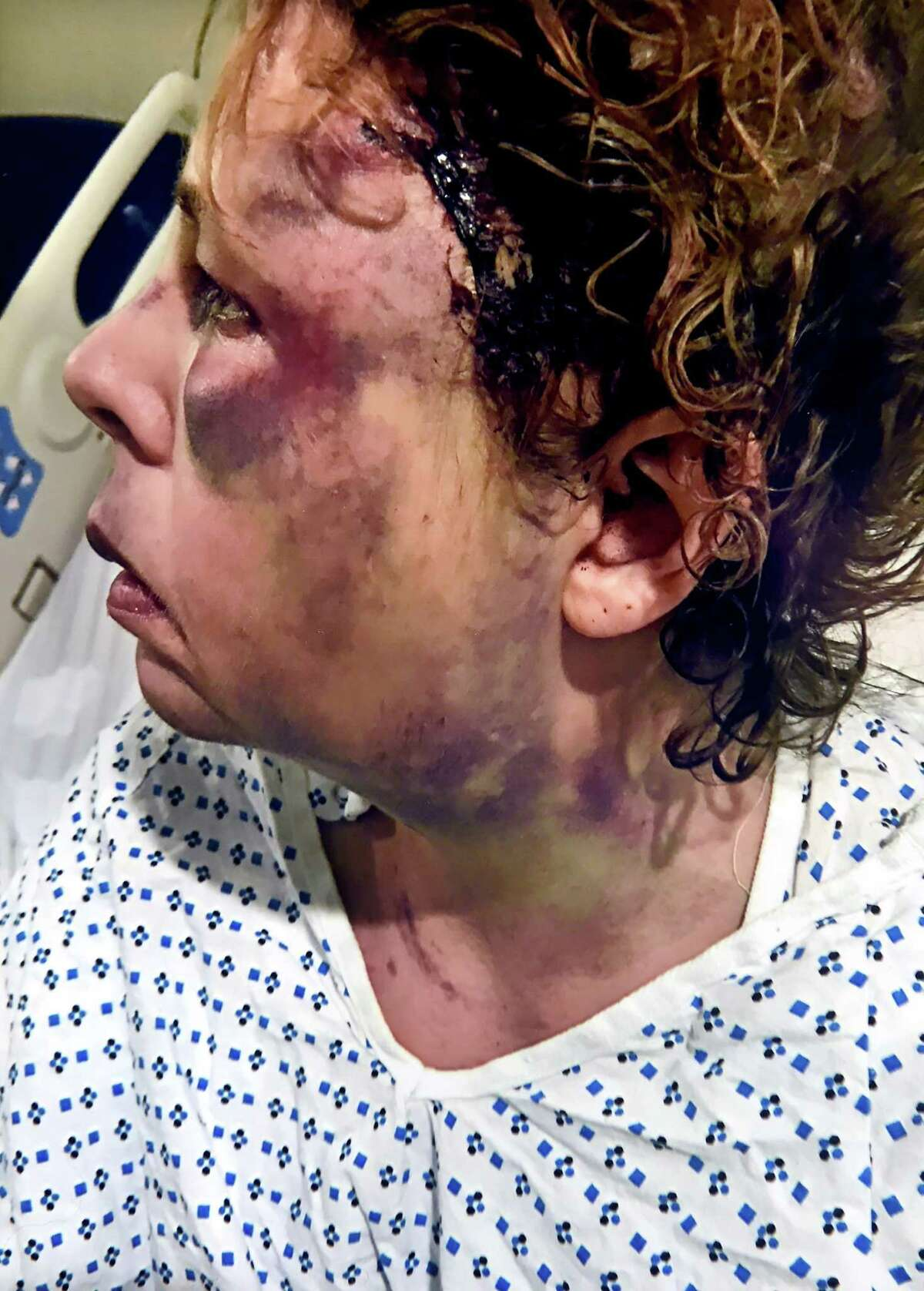 Photograph of Lori Wierzbicki after she was beaten in her home at the at the Milford Housing Authority's apartments on Jepson Drive in Milford in March 2019.