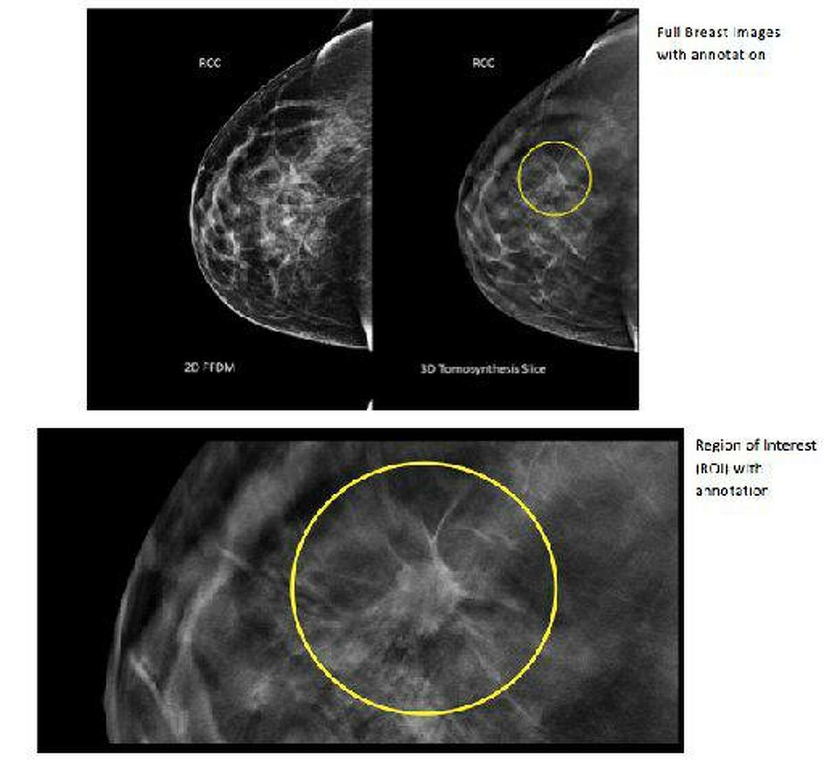 This undated combination provided by Hologic shows three images, an image taken using conventional mammography, top left, an image using 3D mammography, top right, with a tumor circled that wasn't visible on the first image, and a close up image of the region of interest on the 3D mammography.