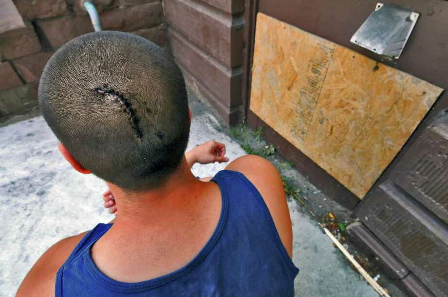 Anthony Militello suffered a gashed head when he was attacked on Saturday in Albany. (Philip Kamrass / Times Union) Photo: Philip Kamrass