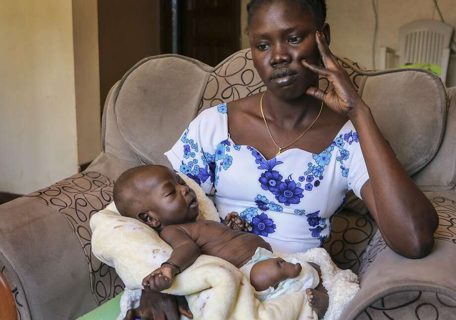 Abui Mou Kueth cradles her son, Ping, who was born with six fingers on each hand, a stunted leg, a deformed foot and kidney swelling, in Nairobi, Kenya, where she sought medical help. Photo: Sam Mednick / Associated Press 2019