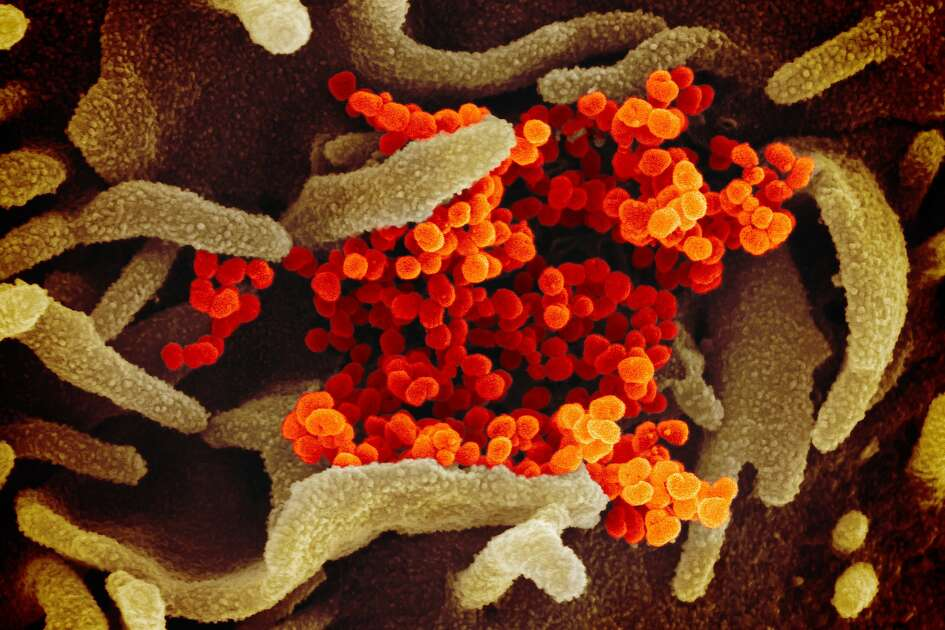 In this image from a scanning electron microscope, the new coronavirus is in orange.