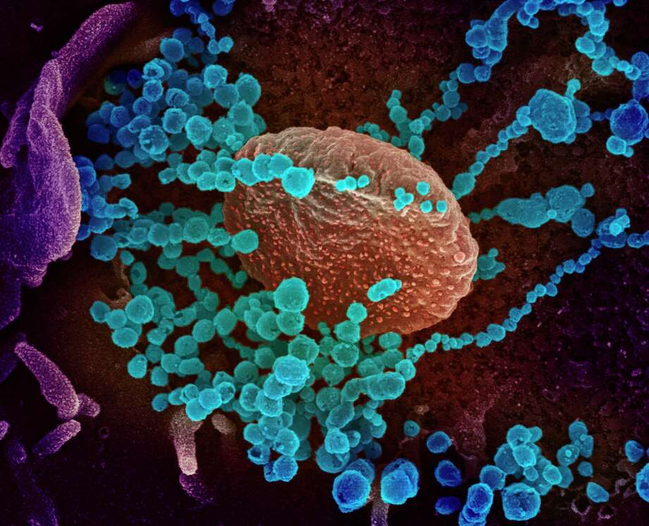 This handout illustration imagetaken with a scanning electron microscope shows SARS-CoV-2 (round blue objects) emerging from the surface of cells cultured in the lab, SARS-CoV-2, also known as 2019-nCoV, is the virus that causes COVID-19, the virus shown was isolated from a patient in the United States. President Donald Trump has played down fears of a major coronavirus outbreak in the United States. Photo: National Institutes Of Health /AFP Via Getty Images / AFP or licensors