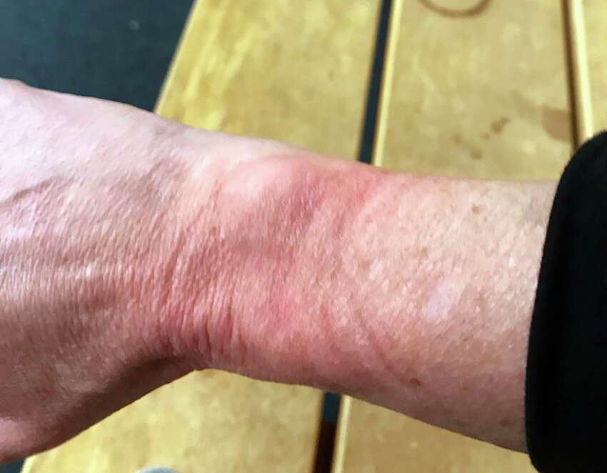 This pictures shows Laura Meeson's wrist which was red and sore after being handcuffed by Saratoga County Sheriff's deputies. (Laura Meeson)