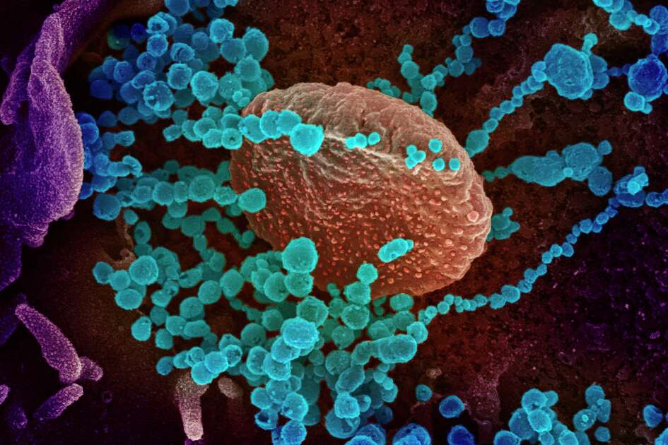 This handout illustration image obtained recently courtesy of the National Institutes of Health taken with a scanning electron microscope shows SARS-CoV-2 (round blue objects) emerging from the surface of cells cultured in the lab, SARS-CoV-2, also known as 2019-nCoV, is the virus that causes the disease COVID-19. The virus shown was isolated from a patient in the U.S. Connecticut state Representative, Lucy Dathan, whose district represents parts of New Canaan has just the information about COVID-19, that residents of the town may need to deal with its crisis.