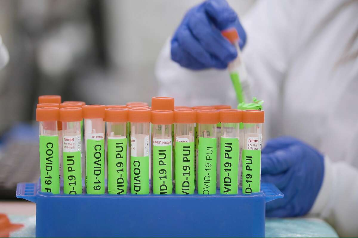 Medical researchers perform serology, testing blood samples to find out whether someone already had and recovered from COVID-19, in Stanford University�s Clinical Virology Lab in March�2020.