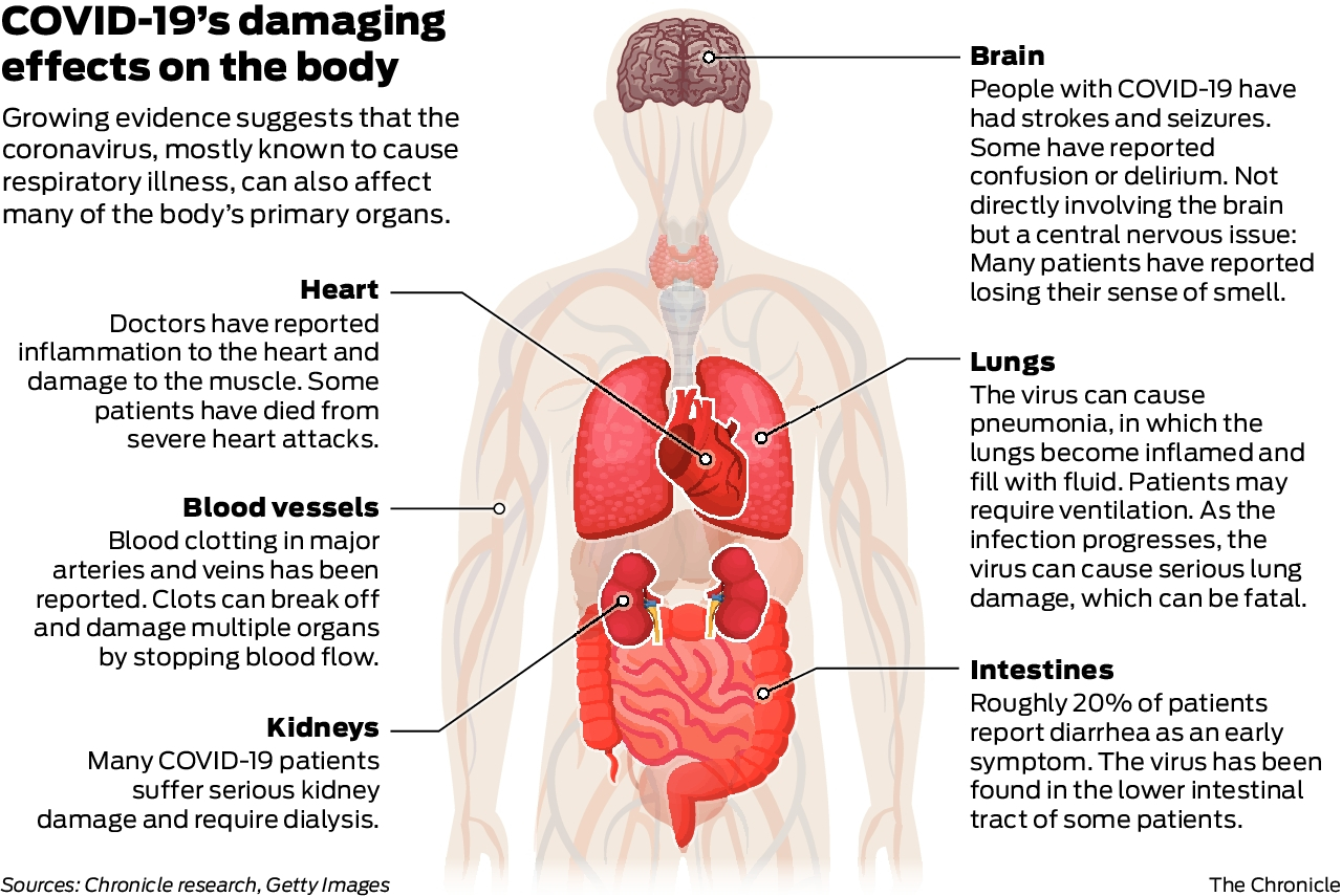 The Insidious Coronavirus Can Invade Heart Lungs Even Brain Sfchronicle Com