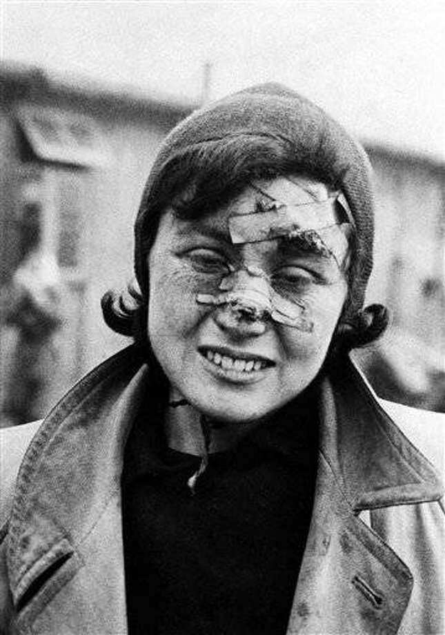 A young girl prisoner at the Belsen concentration camp in Germany shows the result of her brutal treatment, April 29, 1945. After allied forces liberated the town they found some 60,000 civilians suffering from typhus, typhoid and dysentery, and many thousands of the dead. Huts capable of housing about 30 people in many cases were housing as many as 500. (AP Photo)