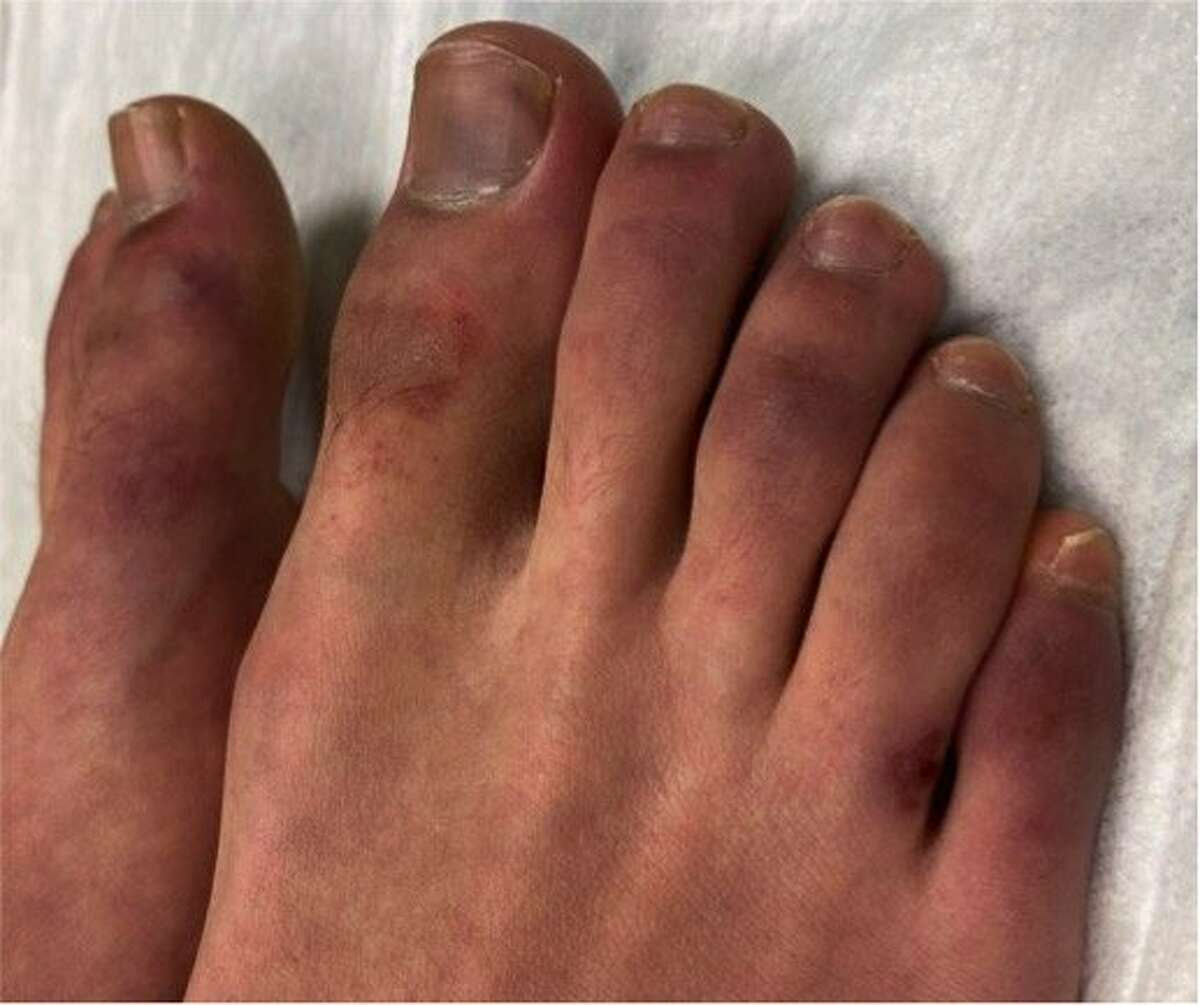 A patient withreddish-purple lesions known as acral perniosis.