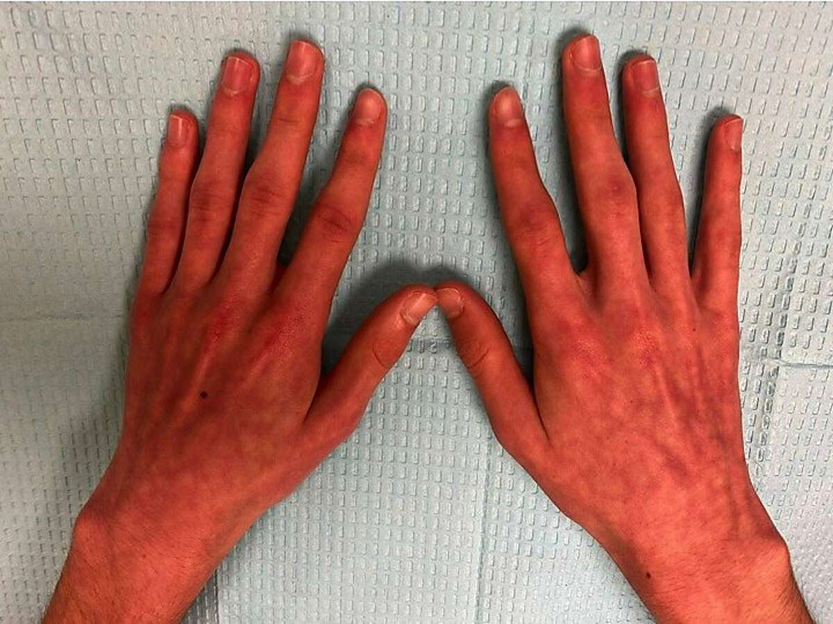 Thereddish-purple lesions known as acral perniosis.