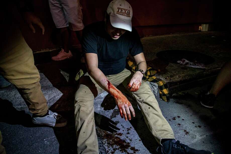 Alex Lence, 23, bleeds from being shot by a non-lethal projectile by San Antonio Police. Photo: Matthew Busch, Contributor / For The San Antonio Express-News / **MANDATORY CREDIT FOR PHOTOG AND SAN ANTONIO EXPRESS-NEWS/NO SALES/MAGS OUT/TV