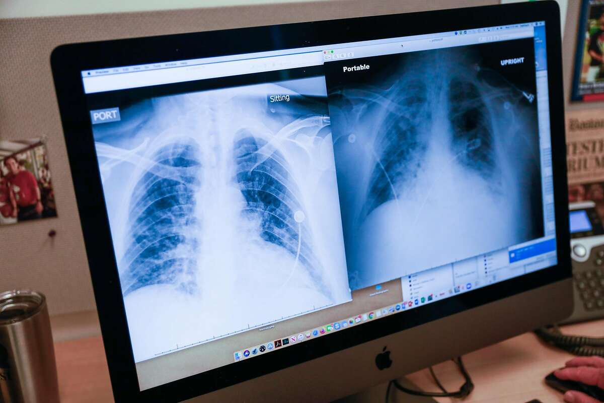 X-rays of a patient with coronavirus in the lungs are seen on Dr. Michael Matthay�s computer at UCSF on Wednesday, June 3, 2020 in San Francisco, California. Dr. Matthay is running a clinical trial to see if a certain kind of stem cell can be used to treat patients with severe lung problems associated with COVID-19. The X-ray on the left is one day before the x-ray on the right and shows how quickly the virus progressed in attacking the lungs.