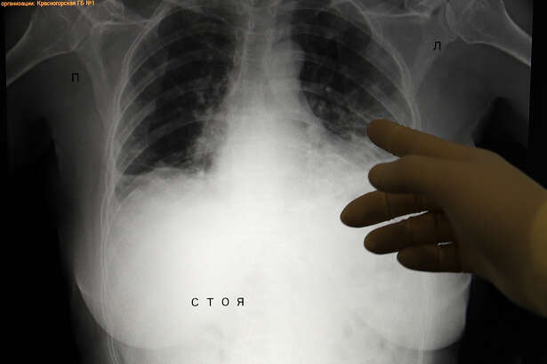 A lung X-ray of a COVID-19 patient at a temporary hospital for coronavirus patients at the Crocus Expo Exhibition Center in Moscow.