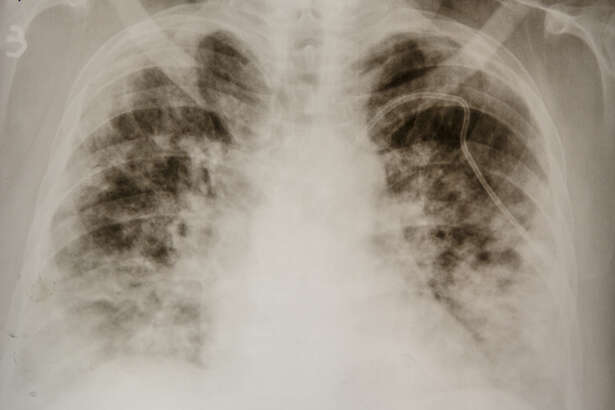 """A chest X-ray of a COVID-19 patient shows """"consolidation,"""" a radiological term refering to dense opacities obscuring lung vessels and bronchial walls. (File photo from the Zakarpattia Centre of Lung Diseases, Uzhhorod, western Ukraine,"""
