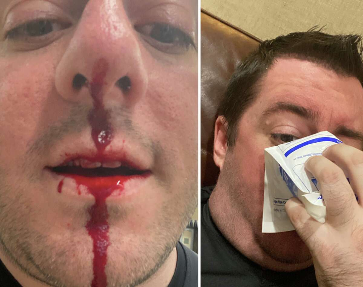 Matthew Egan, 36, was left bloodied Friday after defending a young woman of color from a white man hurling racist abuse at a North Side gym.