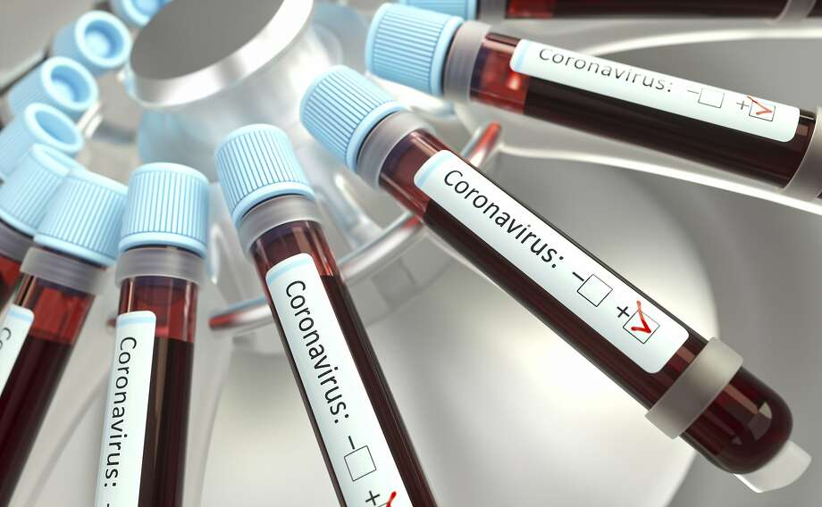 Scientists are trying to determine whether blood type affects the severity of COVID-19 cases. (Photo for illustration purposes.) Photo: Getty Images