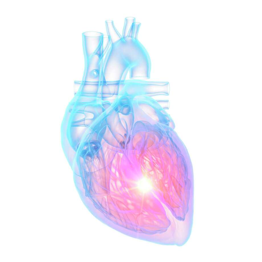 Cleveland Clinic researchers found there has been a higher incidence of a stress induced heart condition that mimics a heart attack during the pandemic. Photo: Getty Images / Science Photo Library / Science Photo Library RF