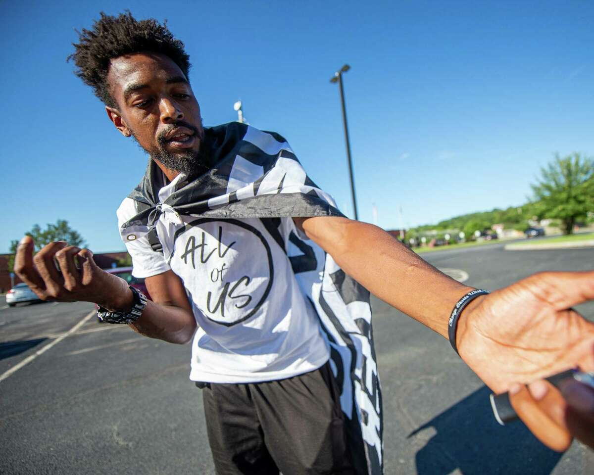 Lexis Figuereo, prior to a Black Lives Matter rally in front of the Rensselaer County jail in Troy, NY, on Friday, July 31, 2020, shows welts on his arm after getting shot with a rubber bullet at a BLM rally in Saratoga Springs, NY, the night before (Jim Franco/Special to the Times Union.)