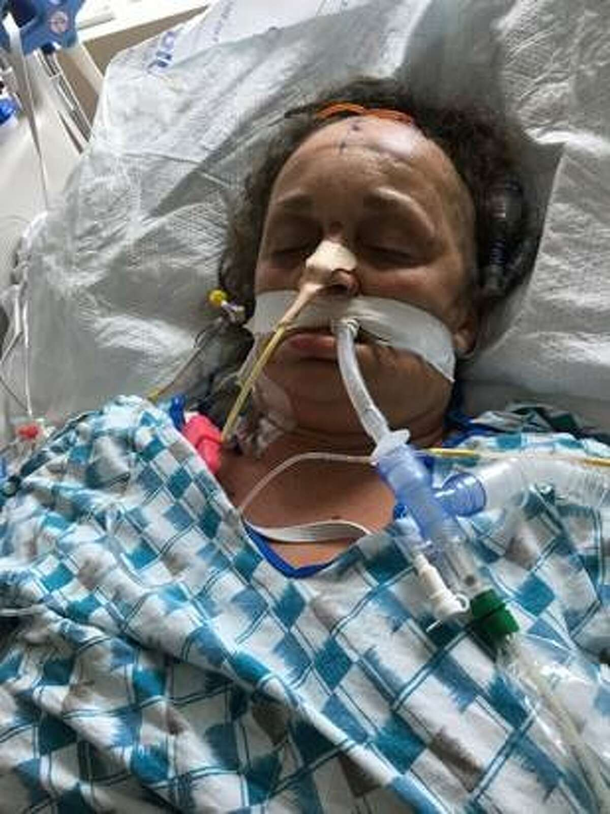 San Francisco General Hospital officials are seeking the community's help in identifying a patient in the hospital's care. The woman was found Aug. 16 near a hotel not far from San Francisco's airport. She is probably in her 50s and stands approximately 5 feet tall and weighs 150 pounds, officials said.
