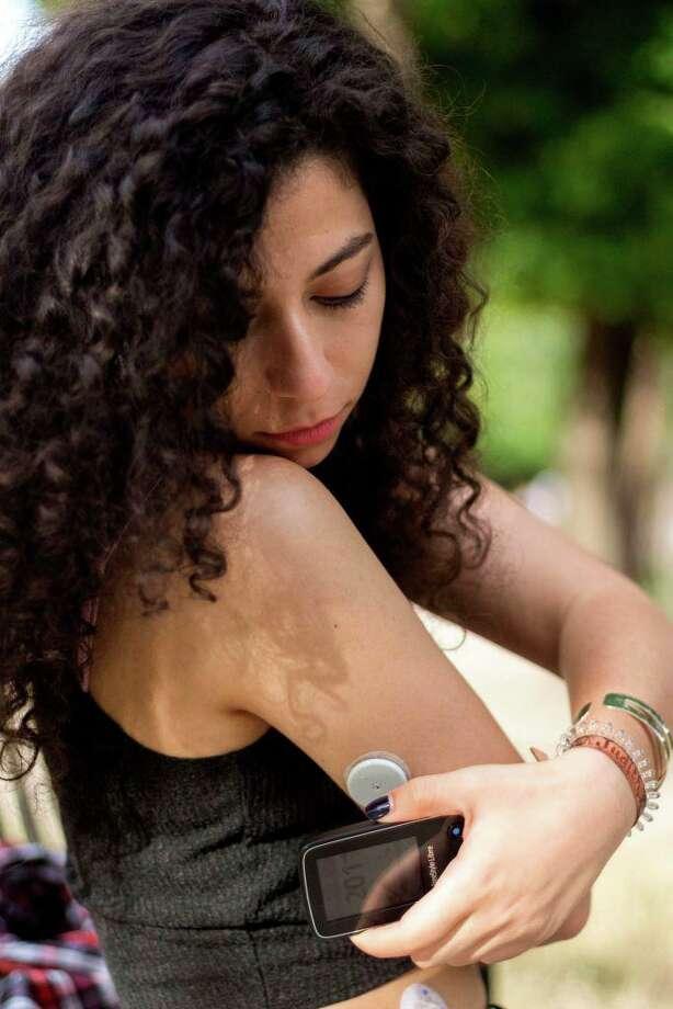 Diabetic teen measures her blood sugar levels. (Photo by: BSIP/Universal Images Group via Getty Images) Photo: BSIP, Contributor / Universal Images Group Via Getty Images / Universal Images Group Editorial
