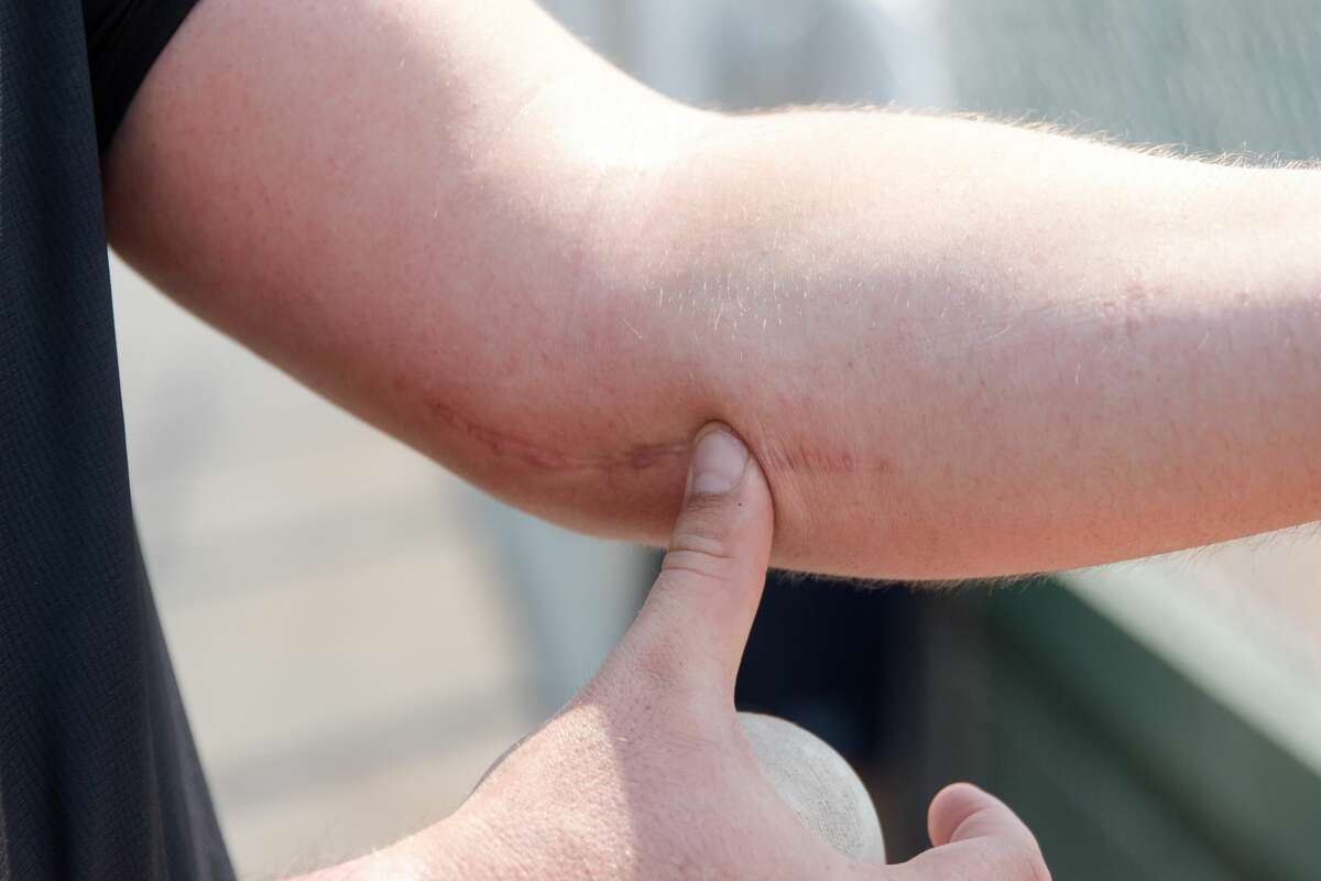 John Gavin points out the scar left over from his Tommy John Surgery while throwing a baseball at Gunderson High School in San Jose on Sept. 2, 2020. Gavin, a minor-league pitching prospect for the San Francisco Giants, is currently rehabbing from his surgery.