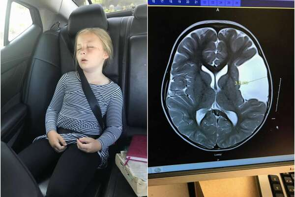 Tobin Hoagland, 9, lives in Boise, Idaho. But when her mom found a Houston surgeon who could help treat the cyst in her brain, the family drove 28 hours straight to Houston for an emergency surgery.