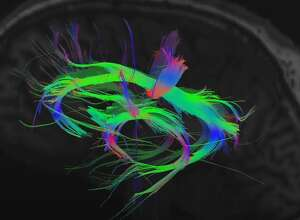 High resolution imaging with GE's experimental advanced brain microstructure MRI scanner