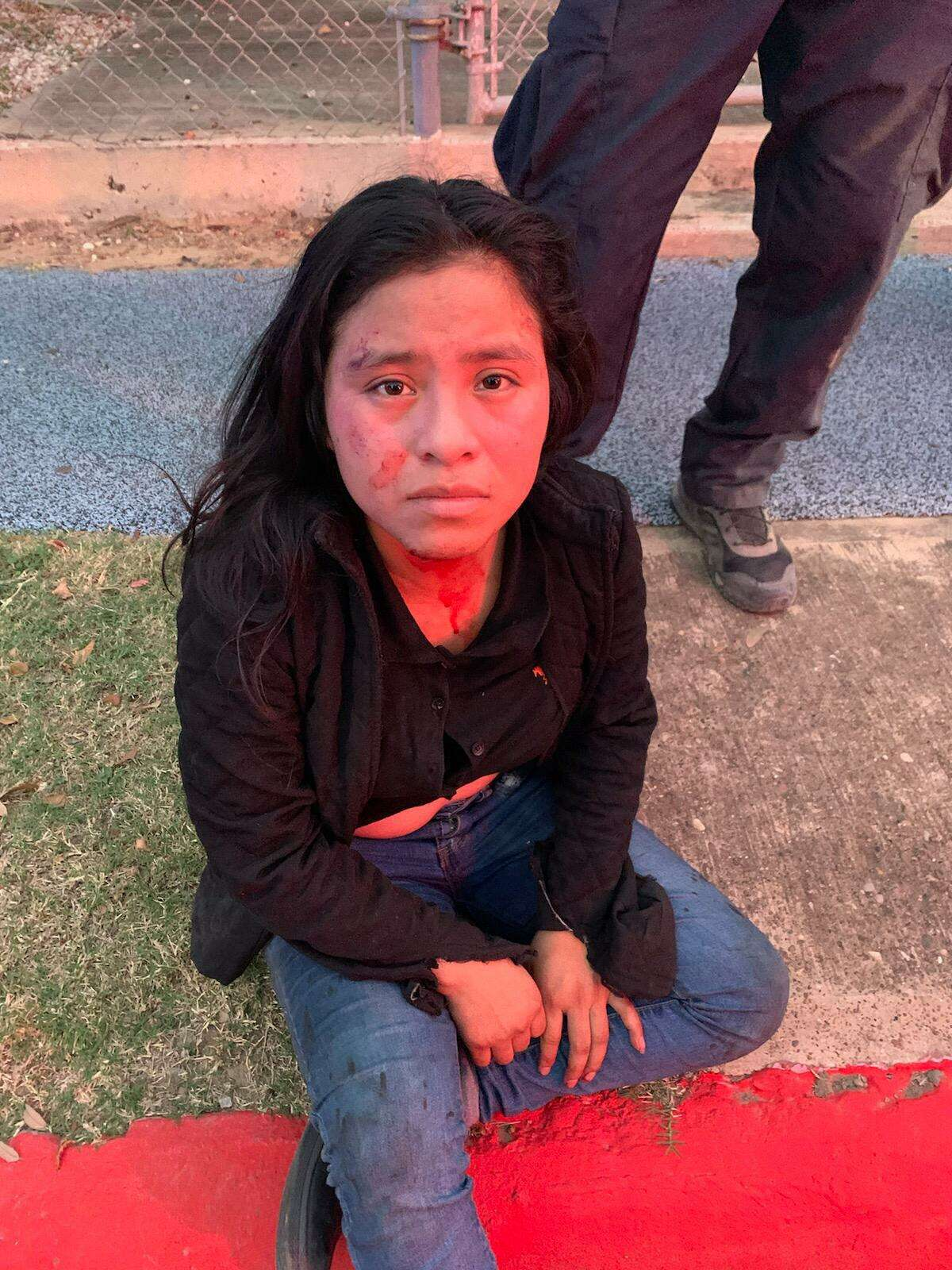 Authorities said this woman bailed out of a vehicle during a pursuit with a suspected human smuggler. She was taken to Laredo Medical Center for further treatment. She was determined to be an immigrant who was illegally present in the country.