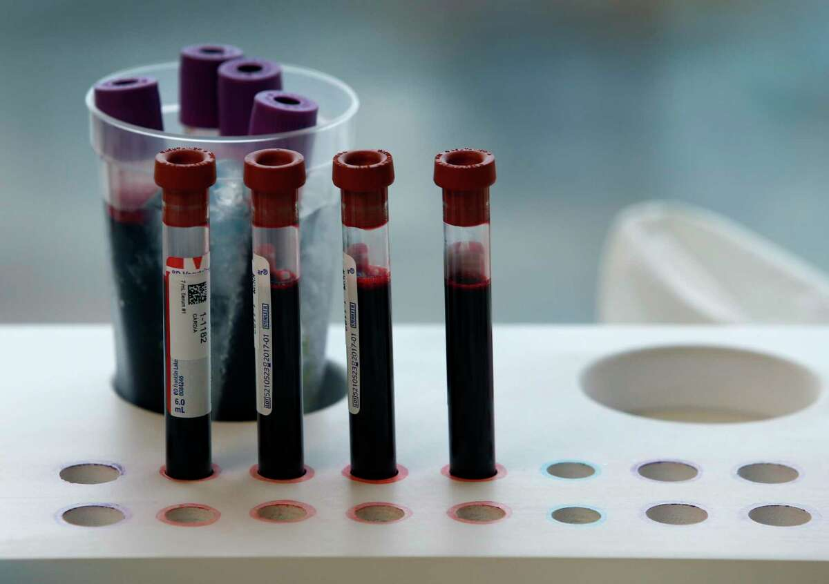 Blood samples are drawn from Rob Francis for the Cardia heart research at Kaiser Permanente Medical Center in Oakland, Calif. on Thursday, Jan. 28, 2016. The on-going project has been tracking the heart health of 5,000 participants nationwide for the past 30-years.