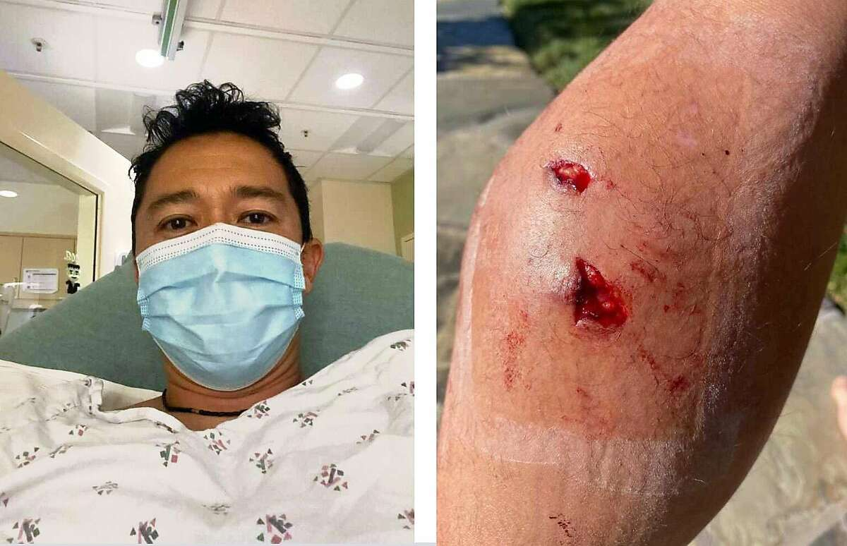 Left: Kenji Sytz at the hospital after getting bit by a coyote on Dec. 4 in Moraga. Right: Bite marks from a coyote on his left calf.