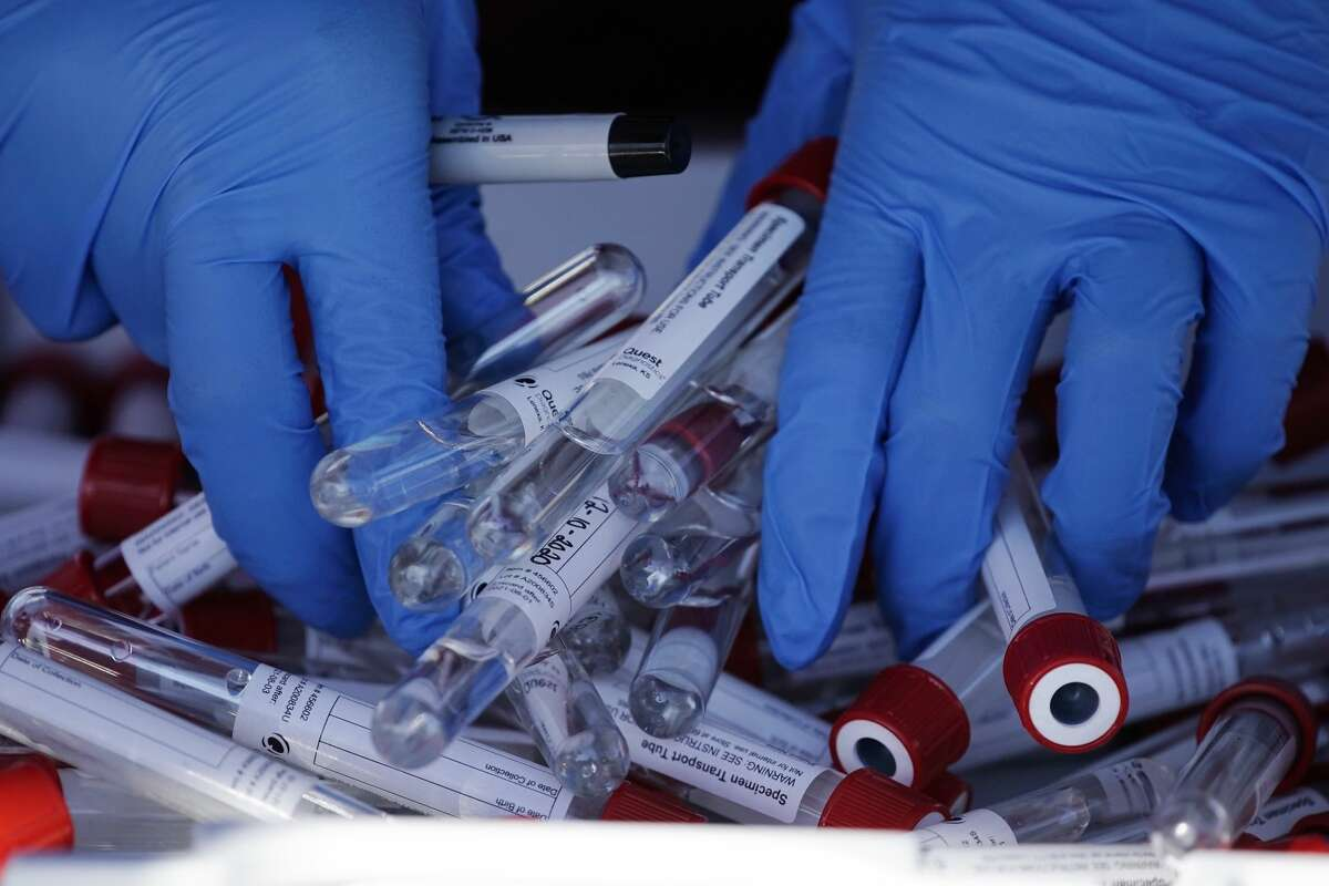 Specimen transport vials are gathered before COVID-19 testing organized by Philadelphia FIGHT Community Health Centers at Mifflin Square Park, Thursday, Dec. 10, 2020, in south Philadelphia.