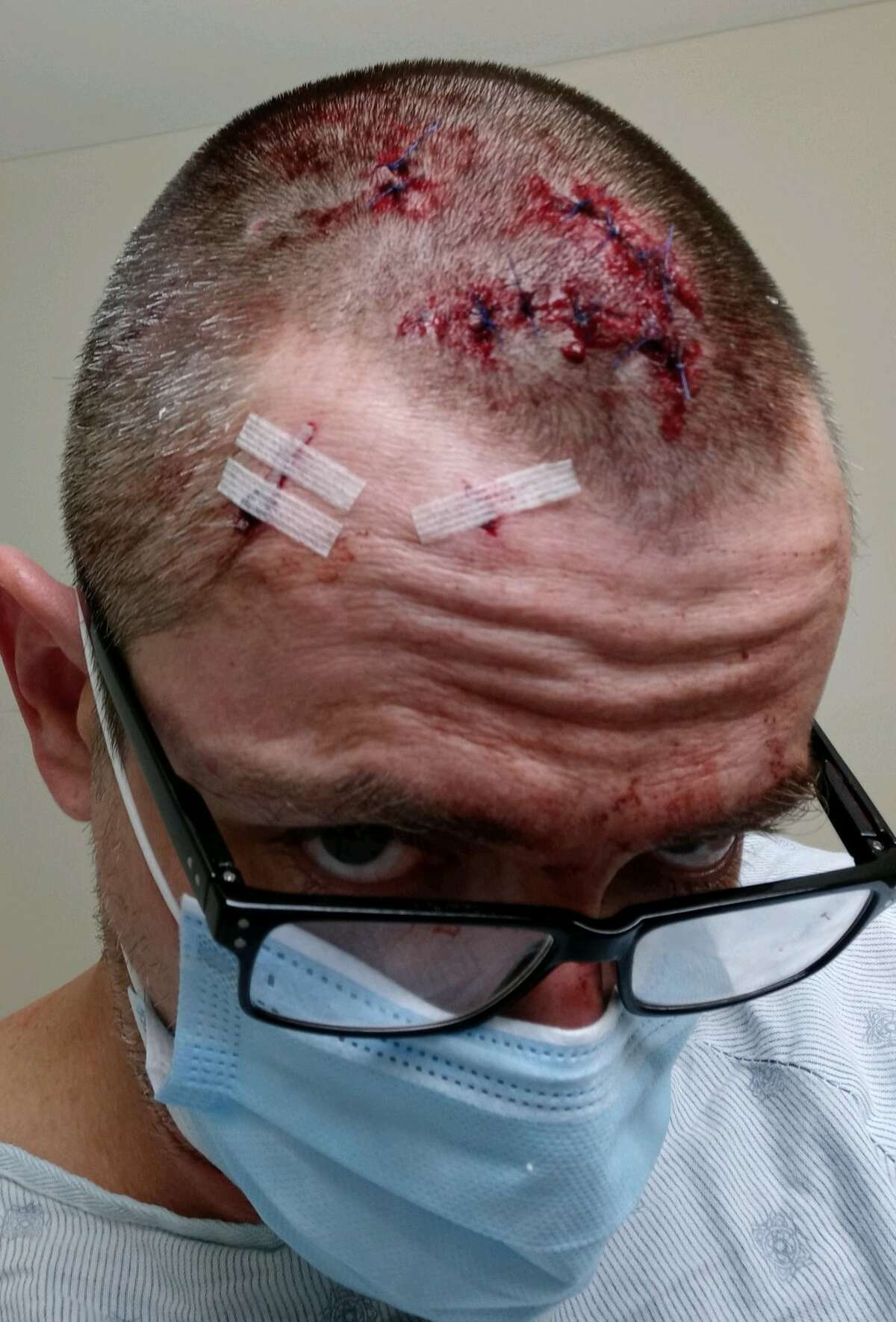 An employee at Grand Prize Bar in Houston had to get ten stitches after being attacked by a customer.