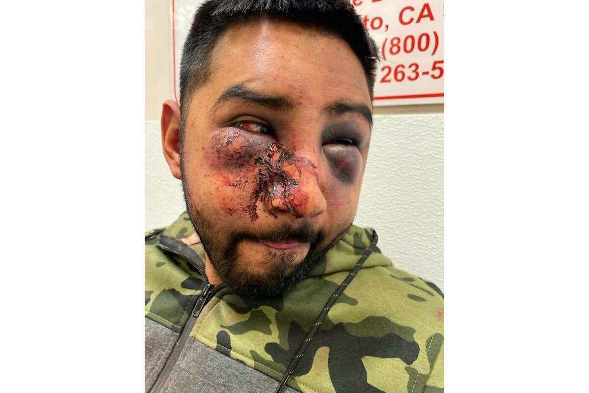 Jacob Servin says he was brutally beaten by deputies after he was arrested on suspicion of public intoxication.