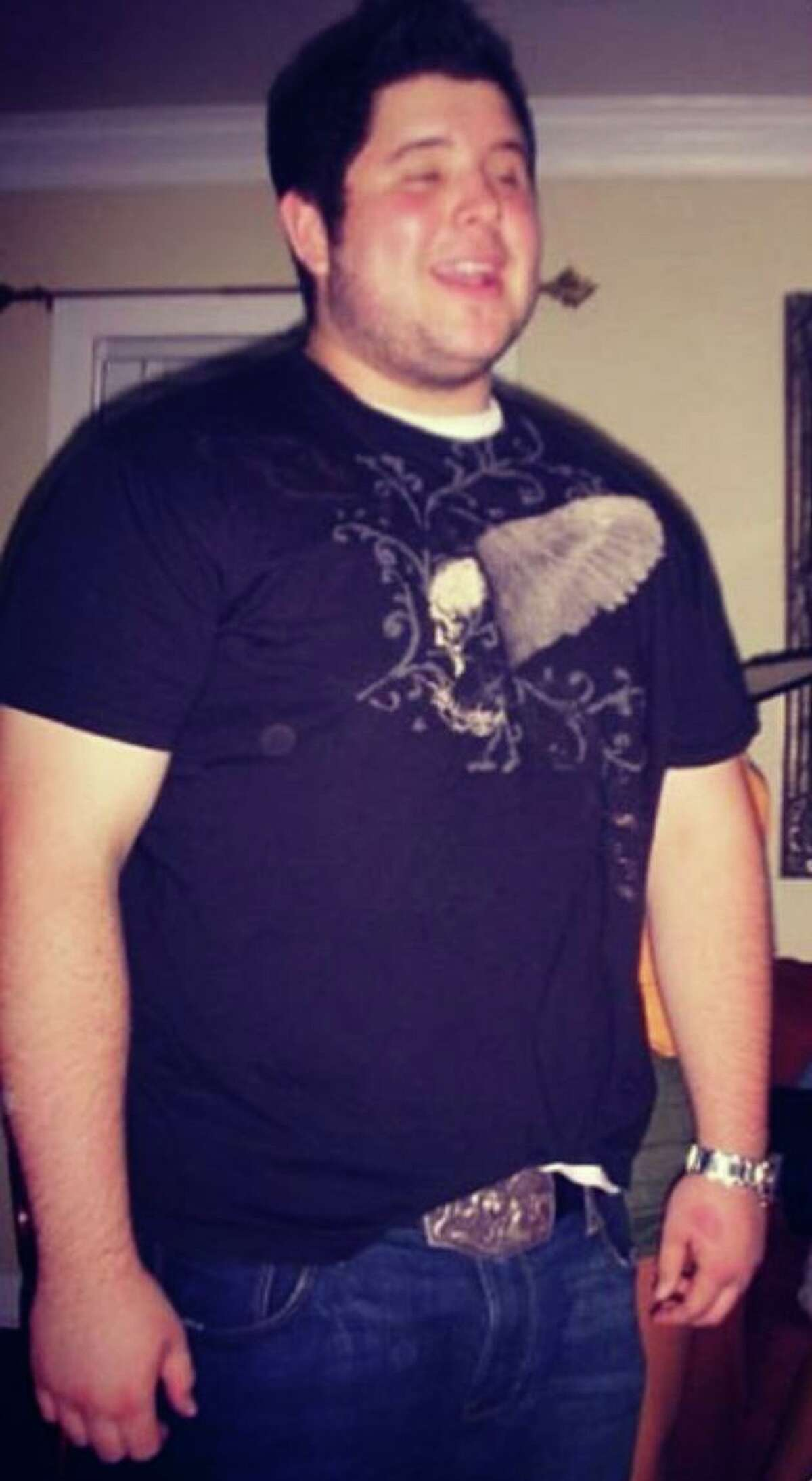 BEFORE: Westbury resident Andres Loperena has lost more than 100 pounds on his weight loss journey.