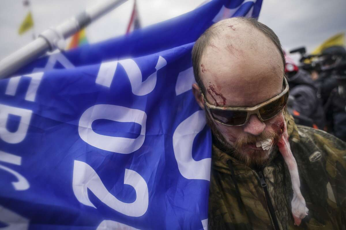 A Trump supporter is shown injured during a confrontation with police during a rally Wednesday, Jan. 6, 2021, at the Capitol in Washington, DC.