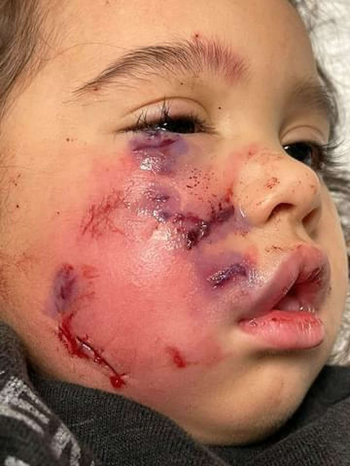 Three-year-old Ronin Waldroup, of Spring, after she was mauled by a leashed dog wearing a service vest inside the Loose Caboose restaurant in Spring on Jan. 9. The dog's owner is awaiting a Montgomery County justice of the peace's ruling about whether it will be euthanized.