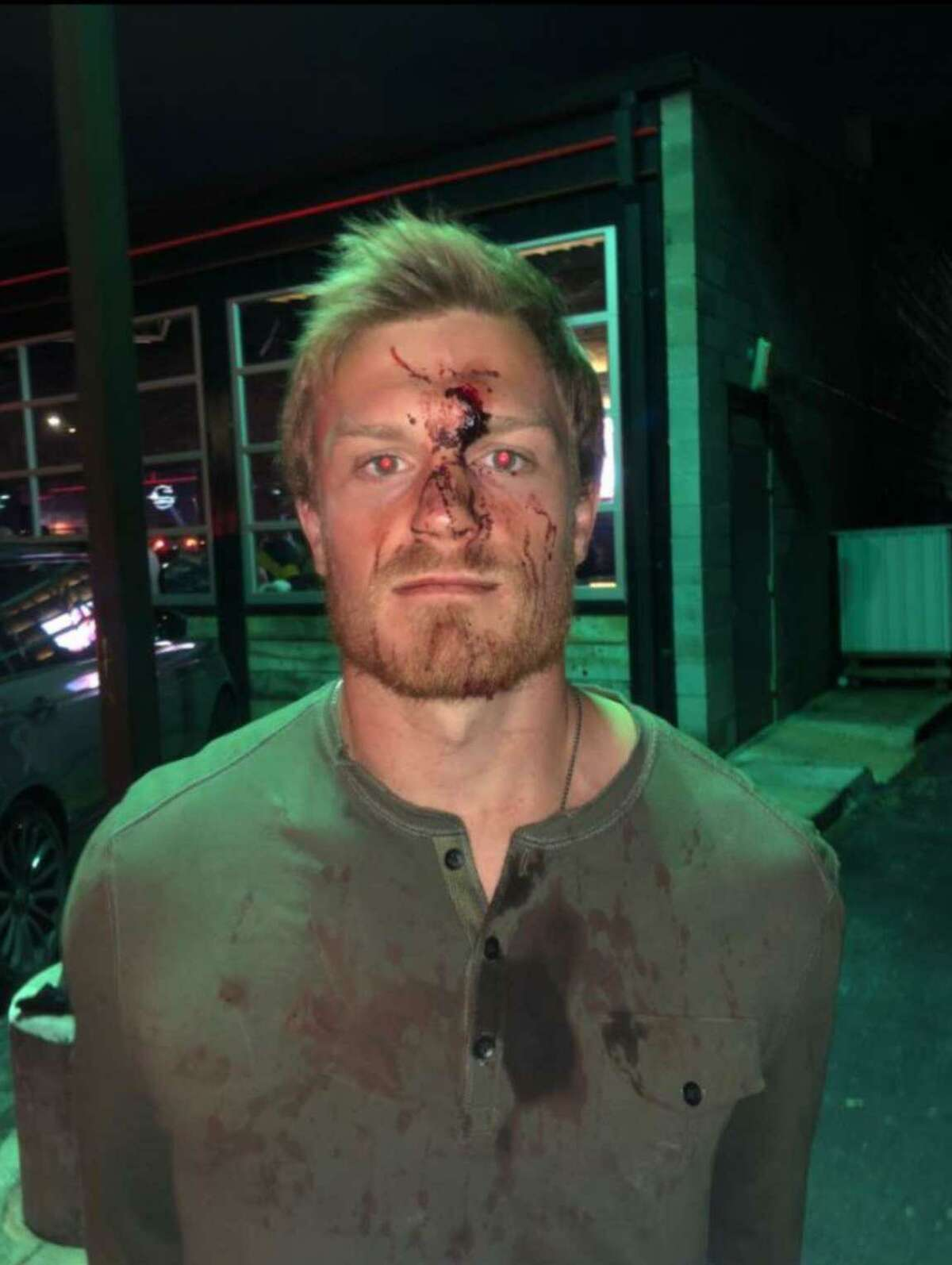 Conner Capel, 21, shows his injuries after an incident with a bouncer at Houston's Concrete Cowboy Bar. Also injured was 24-year-old Kacy Clemens, the son of former Houston Astros pitcher Roger Clemens, on Jan. 1, 2019.