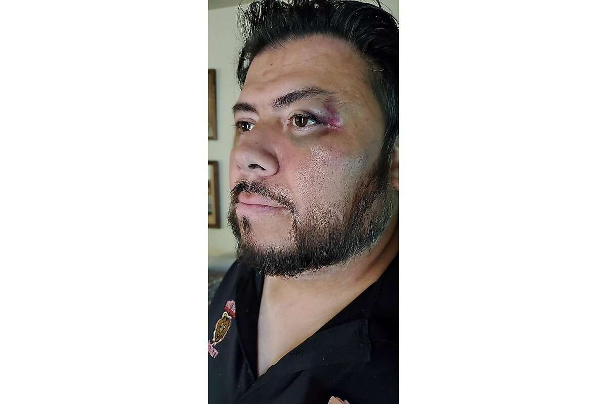 Miguel Minjares, now 45, is pictured in this undated photo shortly after he says two Antioch police officers threw him on a couch, put their knees on his back and punched him several times in the head in September 2019. His attorneys have filed a lawsuit against Antioch Police Department, alleging they forced themselves into the home without warning, legal cause or a warrant.