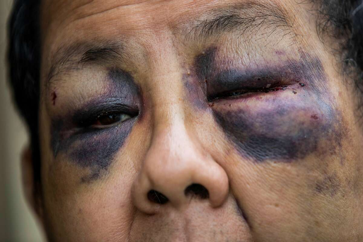 Danny Yu Chang shows the facial injuries he sustained after an attack in San Francisco.